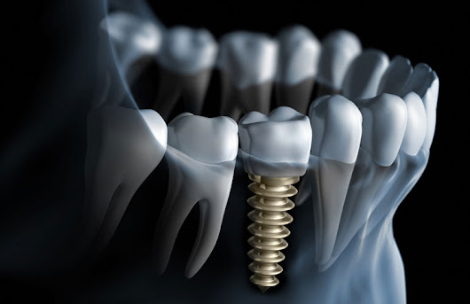 Today's Better Alternative to Dentures - Dental Implants | AXIS Dental Brampton