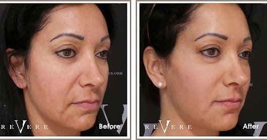 Smooth out wrinkles and fine lines