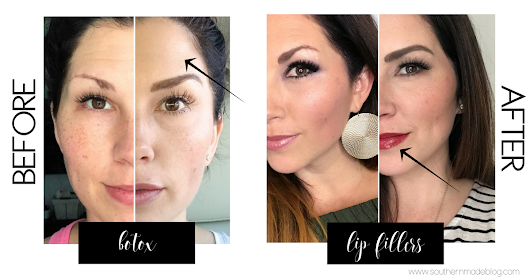 Guess What I Did?! Let's Talk Lip Fillers & Botox! - Southern Made Blog