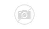Cristiano Ronaldo Injury Photos