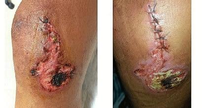il ginocchio di Contador - foto Twitter