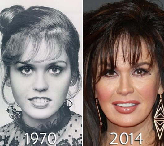 Marie Osmond Plastic Surgery Before & After Photos