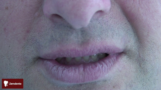 Functional and esthetic prosthodontic treatment of a heavy bruxer | Zerodonto