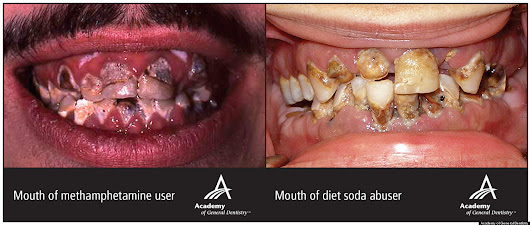 Diet Soda's Effect On Teeth Terrifyingly Similar To Effects Of Meth, Crack Cocaine (PHOTO)