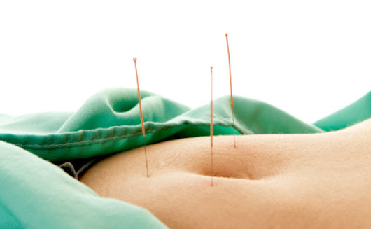 Acupuncture Beats Drug For Endometriosis Relief
