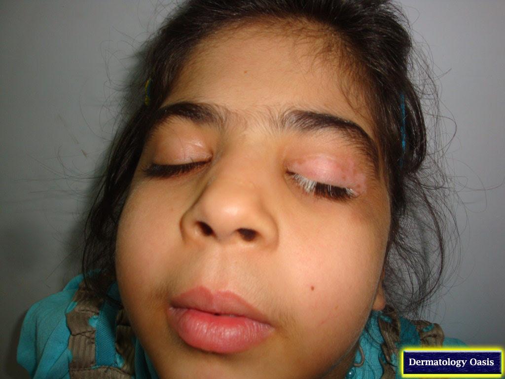 Pigmentary Disorders | Dermatology Oasis
