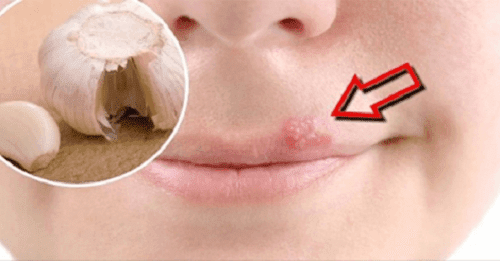 Home Remedies to Heal Cold Sores Fast - Step To Health