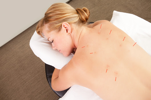 Can you Love Acupuncture and still Fear Needles?
