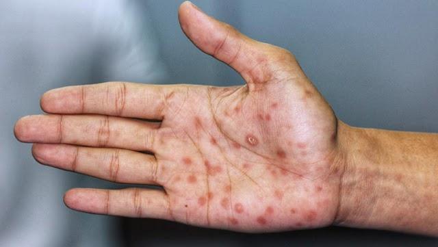 ONG inicia em juazeiro, semana nacional de combate a sífilis e sífilis congênita