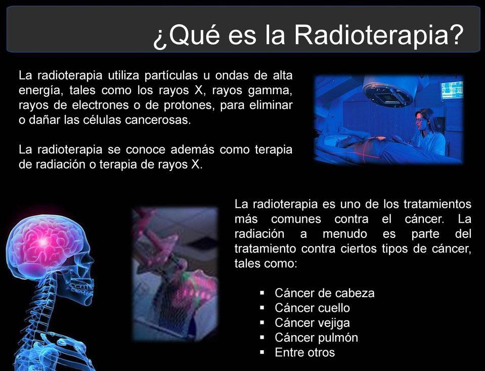 tratamiento con rayos gamma para el cáncer de próstata