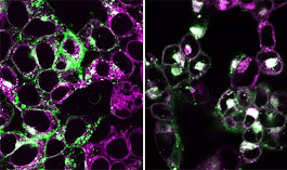 How cytoplasmic DNA triggers inflammation in human cells
