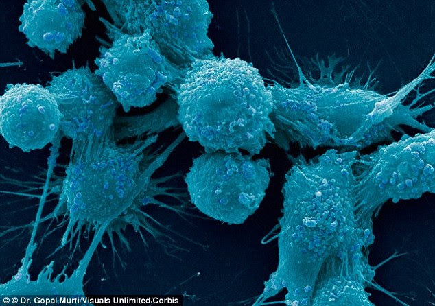 Worldwide, more than 1.1 million cases of prostate cancer (pictured under the microscope) were recorded in 2012, according to the World Cancer Research Fund. It accounted  for eight per cent of all new cancer cases