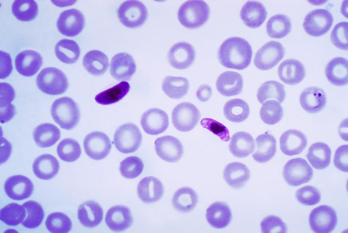 Tesis de Microbiología #USFQ estudia la Biología Molecular de los agentes causantes de la Malaria en la Amazonía de Ecuador
