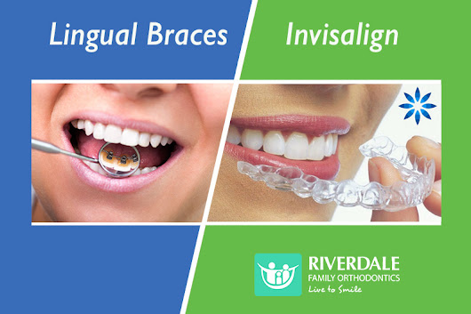 Are Lingual Braces or Invisalign Better for You?