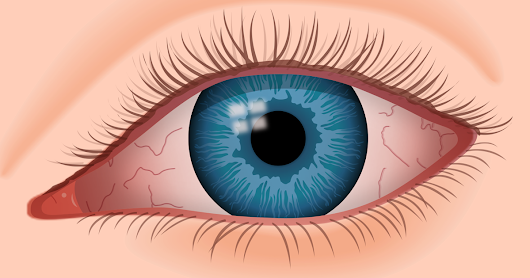 10 Symptoms of Dry Eye Syndrome + Possible Causes