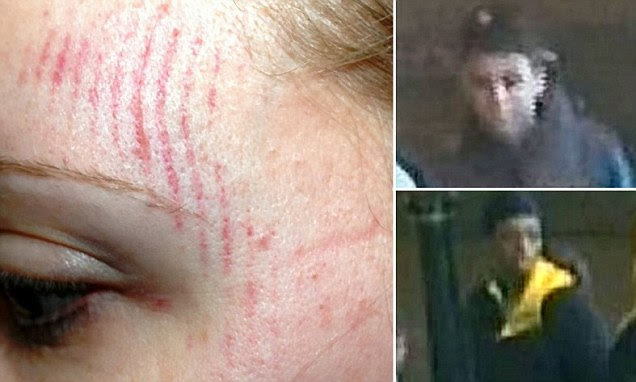 CCTV images have been released to try and identify a pack of grinning teenage thugs who stamped on a womanís head leaving a footprint mark on her face