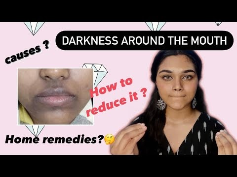 tamil-Darkness around the mouth- causes, home remedies and how to reduce it
