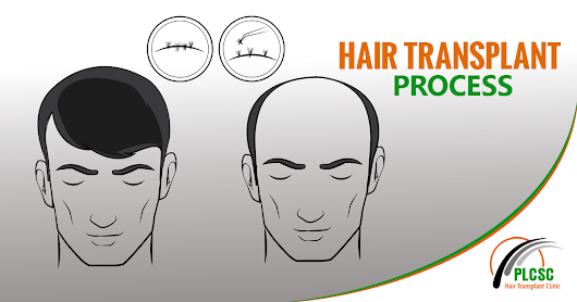 How did I get my hair transplant done before Puja while facing a flood in my hometown?