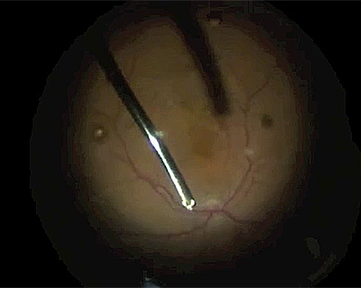 Removal of Silicone Oil Caused By Bevacizumab Injection