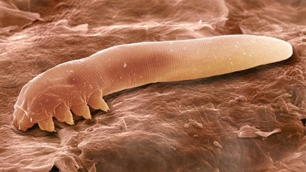 A Demodex folliculorum under a scanning electron microscope (Credit: Power and Syred/SPL)