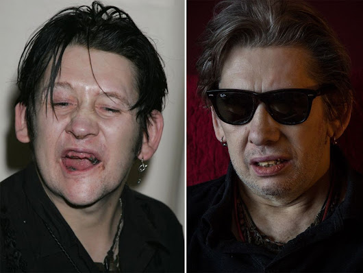 Getting the inside story from Shane MacGowan's dental surgeon