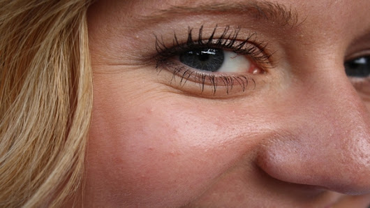 How to Get Rid of Eye Wrinkles, Crow's Feet and Bags