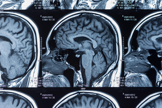 "Brain scans may reveal mental secret of ""Super Agers"" - CBS News"