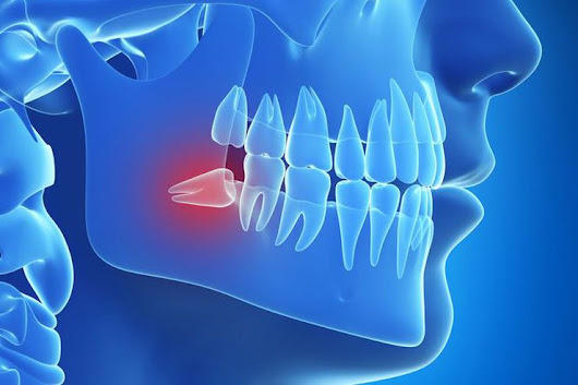 Wisdom Tooth Removal – Salt Lake City, UT – Oral Surgery