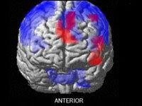 Brain scan from Dr. Daniel Langleben's research.