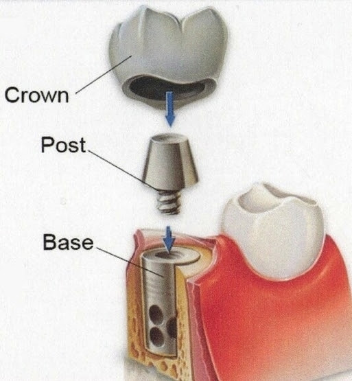 Dental Implant Faqs Chevy Chase Md Obeid Dental Manual Guide