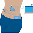 Argentina presents Latin America's first artificial pancreas