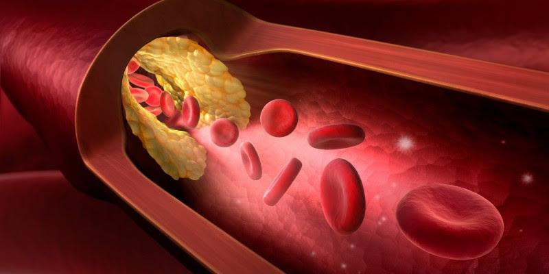 Bluthochdruck - Krankhafter Druck in den Arterien ...