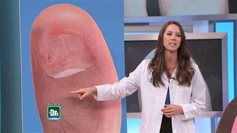 toenail falls   doctors tv show