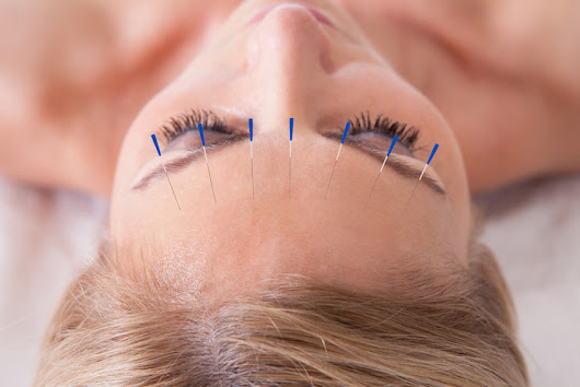 Things You Did Not Know About How Acupuncture Can Help You