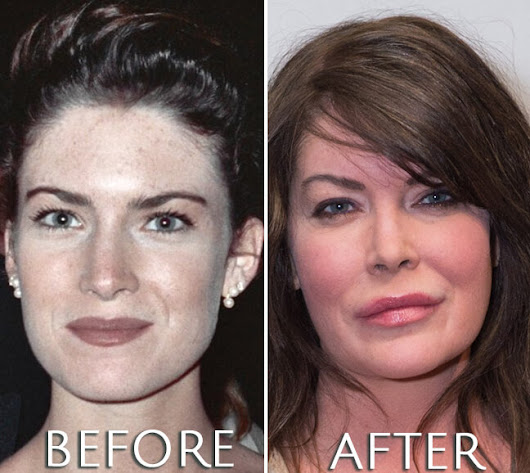 Lara Flynn Boil Before & After Plastic Surgery Photos