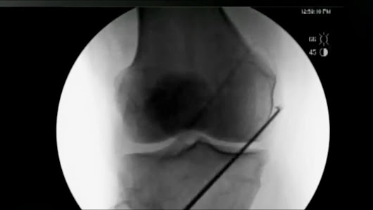 New knee procedure eases arthritis pain without surgery