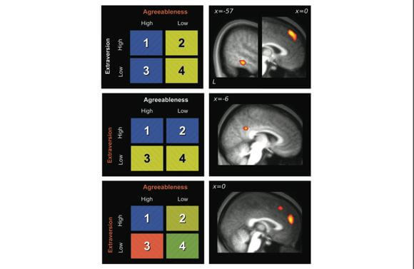 """Varying degrees of a person's deemed """"agreeableness"""" and """"extraversion"""" combine to produce different brain activation patterns in the brain. [Source: Cerebral Cortex]"""