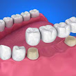Dentist near Avenal, CA describes the purpose of restorations including dental crowns and bridges