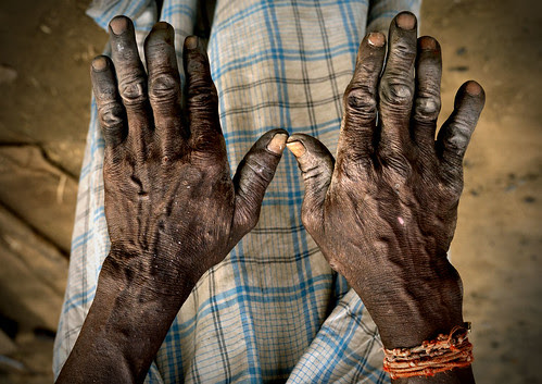 Blacksmith hands, India