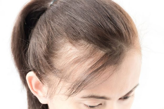 Managing PCOS Associated Hair Loss | Vancouver Naturopathic Clinic & Doctor