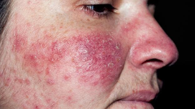 Rosacea can lead to severe facial blemishes (Credit: Dr Harout Tanielian/SPL)
