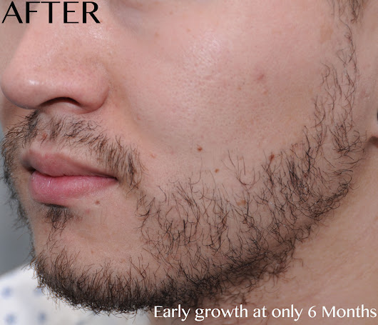 FUE Beard Transplant via ARTAS - Forum By and for Hair Loss Patients