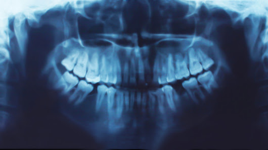 Digital X Rays - Unique Dental of Worcester