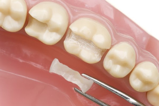What Are Dental Fillings Used For?