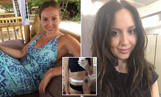 Young woman, 28, shares her experience of dating with a colostomy bag