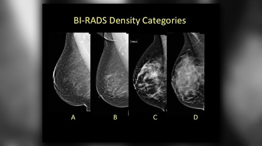 What is breast density & why does it matter?