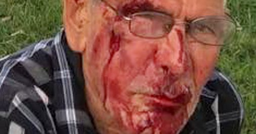Tourist visiting family beaten with a brick in Los Angeles.  Woman Arrested in Beating of Man, 92. '...