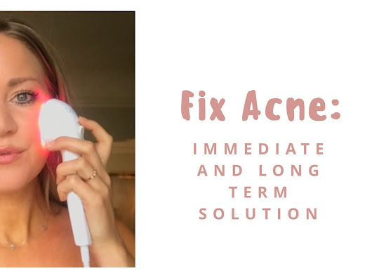 Fix Acne: Short & Long Term Solution! - Traveling Fig