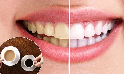 Surprise! Tea actually stains your teeth more than coffee
