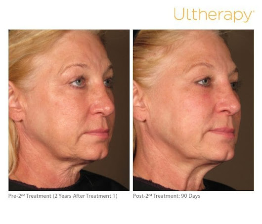 Ultherapy Orange County | Ultherapy Treatment Newport Beach